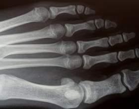 Fonctions d`assistant médical orthopédique фото