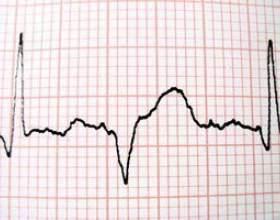 Quelles classes collège sont nécessaires pour un échographiste? фото